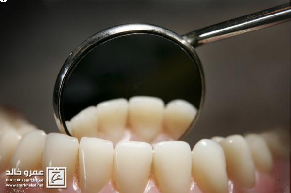 لا تهمل في علاج خراج الأسنان مضاعفات قد تؤدي للوفاة